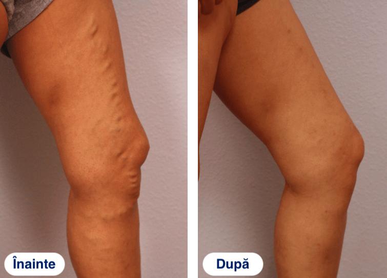 Etapele varicelor: fotografie și clasificarea bolii