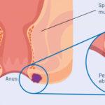 tratament abces si fistula anorectala cluj anastasios