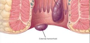 tratament hemoroizi cluj anastasios