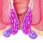 tratament marisce hemoroidale cluj anastasios